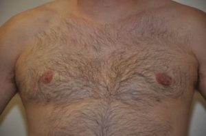 Patient 1 - Mastectomy and Liposuction Front After