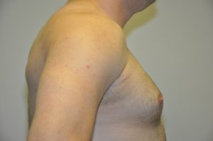 Patient 1 - Mastectomy and Liposuction Side Before