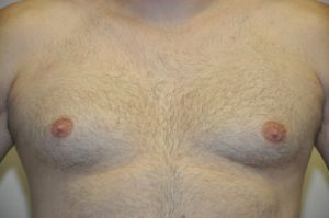 Patient 1 - Mastectomy and Liposuction Front Before