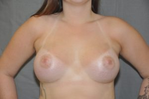 Patient 10 - Breast Augmentation with Implants After_1