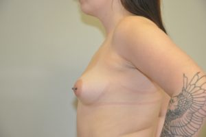 Patient 10 - Breast Augmentation with Implants Before_1