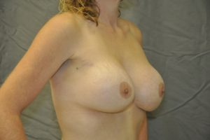 Patient 11 - Breast Augmentation with Implants After