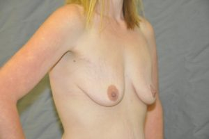 Patient 11 - Breast Augmentation with Implants Before