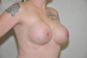 Patient 12 - Breast Augmentation with Implants After