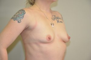 Patient 12 - Breast Augmentation with Implants Before
