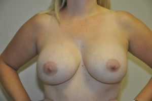 Patient 13 - Breast Augmentation with Implants After