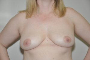 Patient 13 - Breast Augmentation with Implants Before