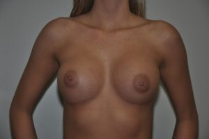 Patient 14 - Breast Augmentation with Implants After