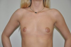 Patient 14 - Breast Augmentation with Implants Before