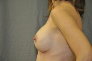 Patient 15 - Breast Augmentation Revision After