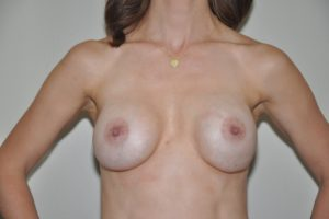 Patient 15 - Breast Augmentation Revision Before