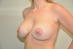Patient 16 - Breast Augmentation After