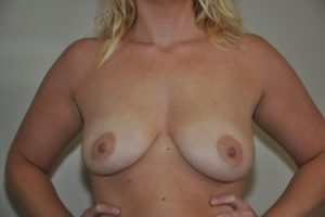 Patient 16 - Breast Augmentation Before
