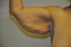 Patient 1 - Arm Reduction/Lift Before