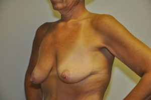 Patient 1 - Breast Lift Before