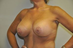 Patient 1 - Breast Lift After
