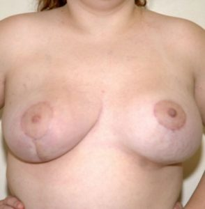 Patient 1 - Breast Reconstruction After