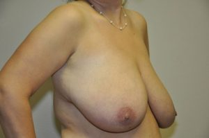 Patient 1 - Breast Reduction Before