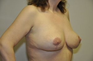 Patient 1 - Breast Reduction After