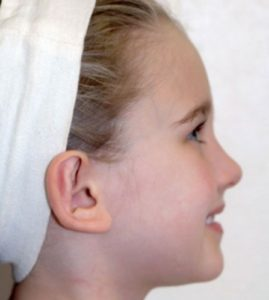 Patient 1 - Ears After