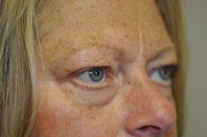Patient 1 - Eyelids Before