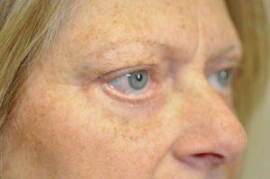 Patient 1 - Eyelids After