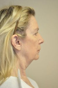 Patient 1 - Face Lift Before