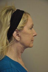 Patient 1 - Face Lift After