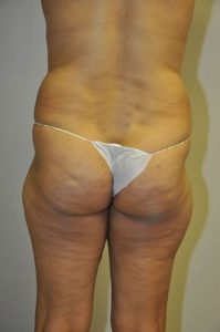 Patient 1 - Liposuction Before