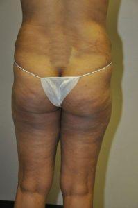 Patient 1 - Liposuction After