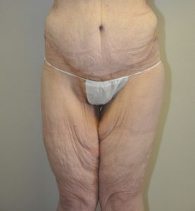 Patient 6 - Massive Weight Loss Buttock Lift After Front