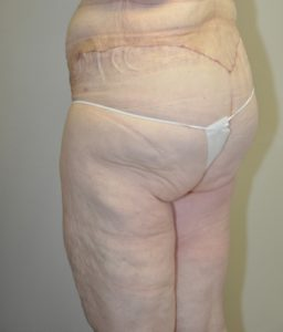 Patient 6 - Massive Weight Loss Buttock Lift After Back Side