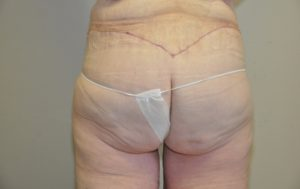 Patient 6 - Massive Weight Loss Buttock Lift After Back