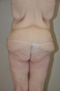 Patient 6 - Massive Weight Loss Buttock Lift Before Back