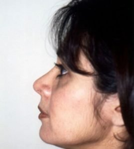 Patient 1 - Nose After