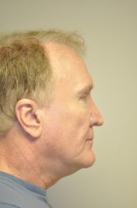 Patient 1 - Sculptra injections Before Side