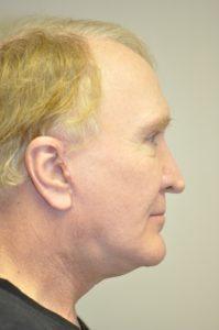 Patient 1 - Sculptra injections After Side