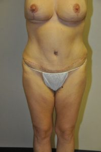 Patient 1 - Tummy Tuck After