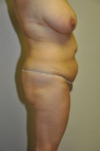 Patient 1 - Tummy Tuck Before