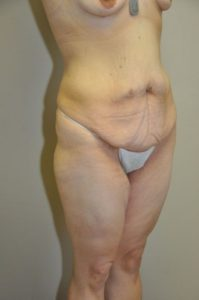 Patient 1 - Tummy Tuck Following Large Weight Loss Before