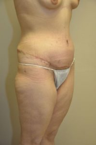 Patient 1 - Tummy Tuck Following Large Weight Loss After