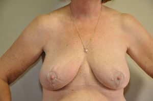 Patient 2 - Breast Reduction After