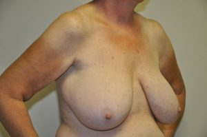 Patient 2 - Breast Reduction Before