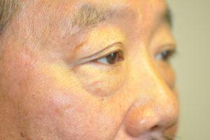 Patient 2 - Eye Bags Before