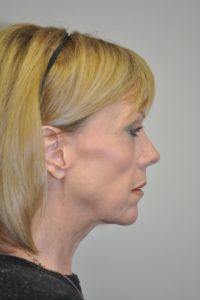 Patient 2 - Face Lift Before