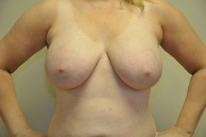 Patient 2 - Breast Augmentation with Implants After