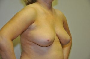 Patient 2 - Breast Augmentation with Implants Before