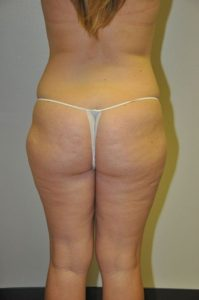 Patient 2 - Liposuction Before