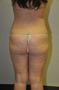 Patient 2 - Liposuction After