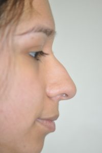 Patient 2 - Nose Before